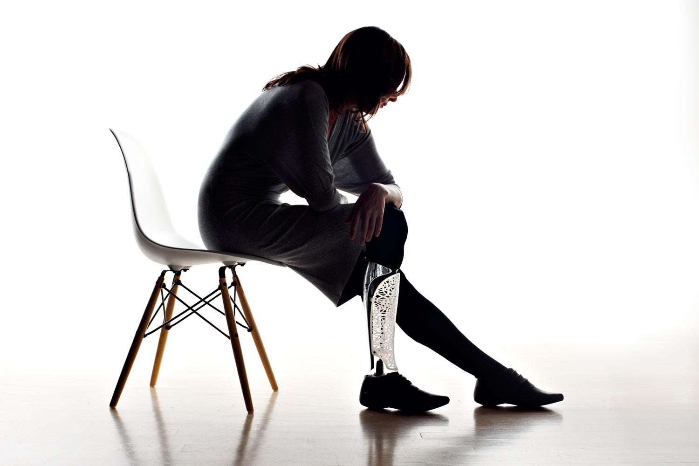 leg 3d life prints prosthetics