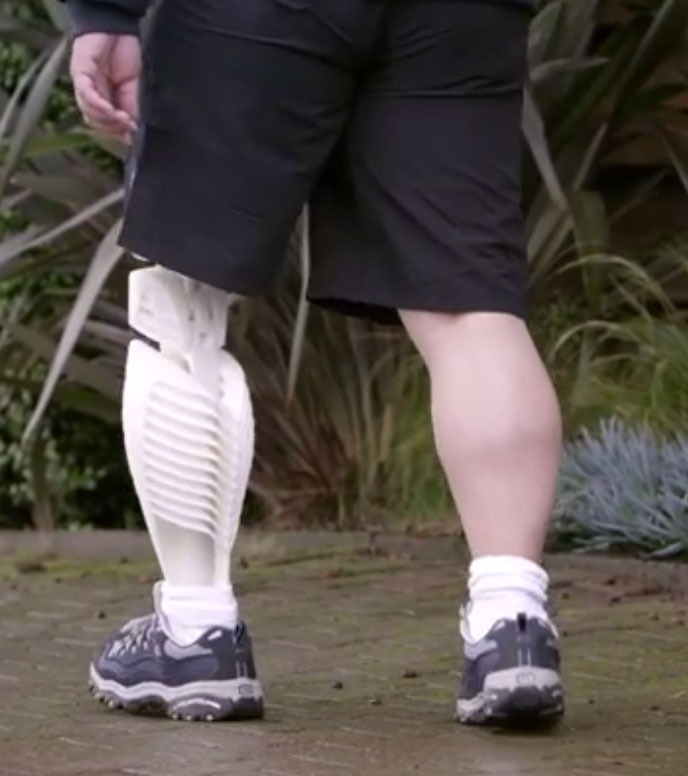 leg prosthetic 3d systems