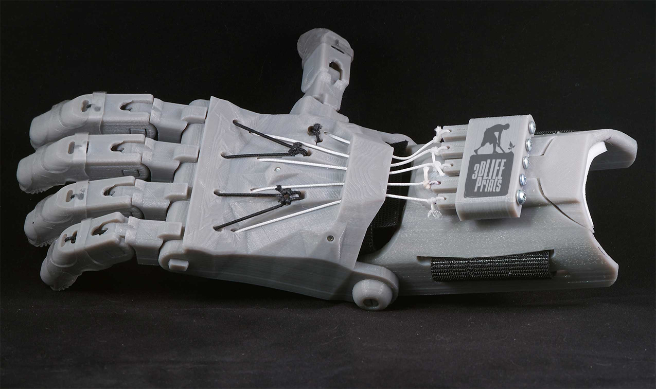 Mobile 3d Printing Of Custom Prosthetics 3d Printing