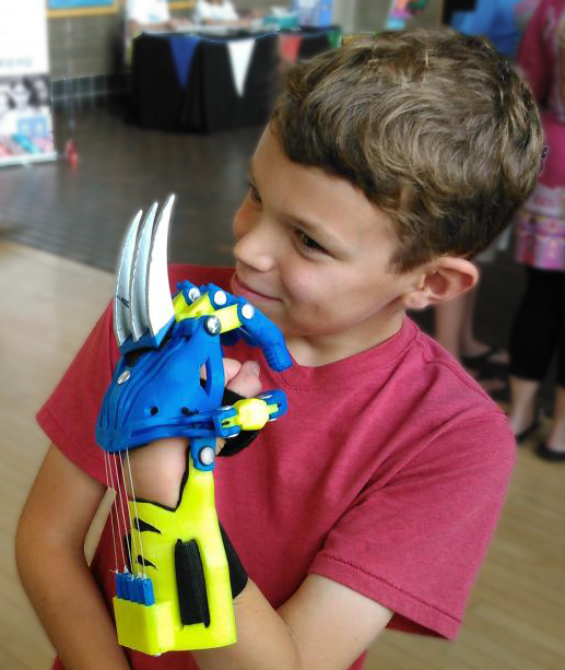 wolverine 3d printed hand prosthetic