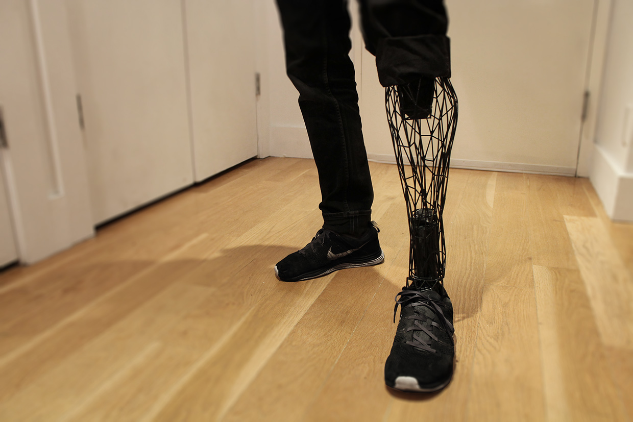 exo 3 printed leg prosthesis in action