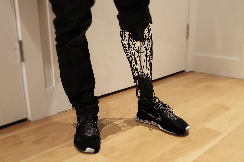 exo 3 printed leg prosthesis