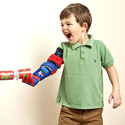 feature charlie_3d printed arm_wrapper