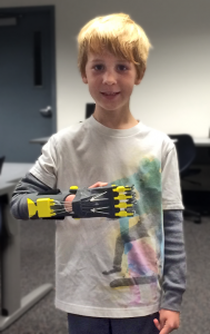 johnny wearing 3d printed hand