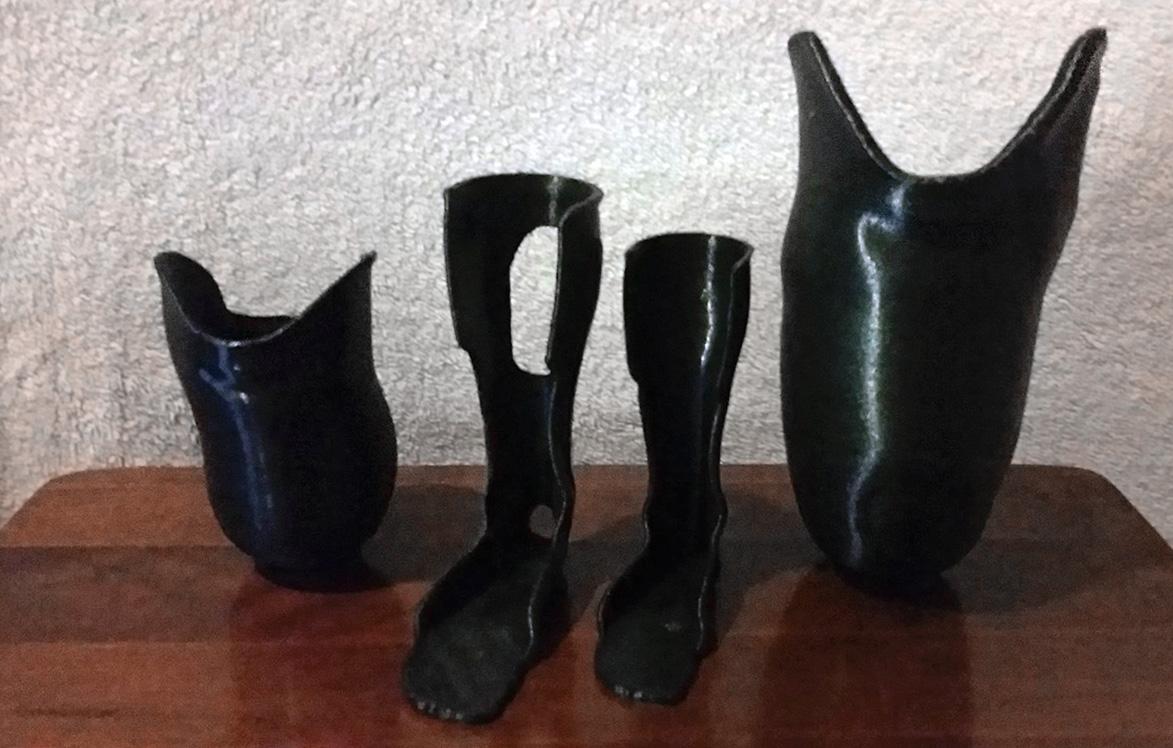 3d printed leg prosthetic