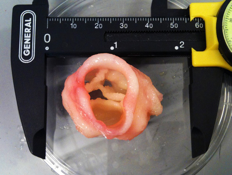3D printed artificial-heart-valve from jonathan butcher