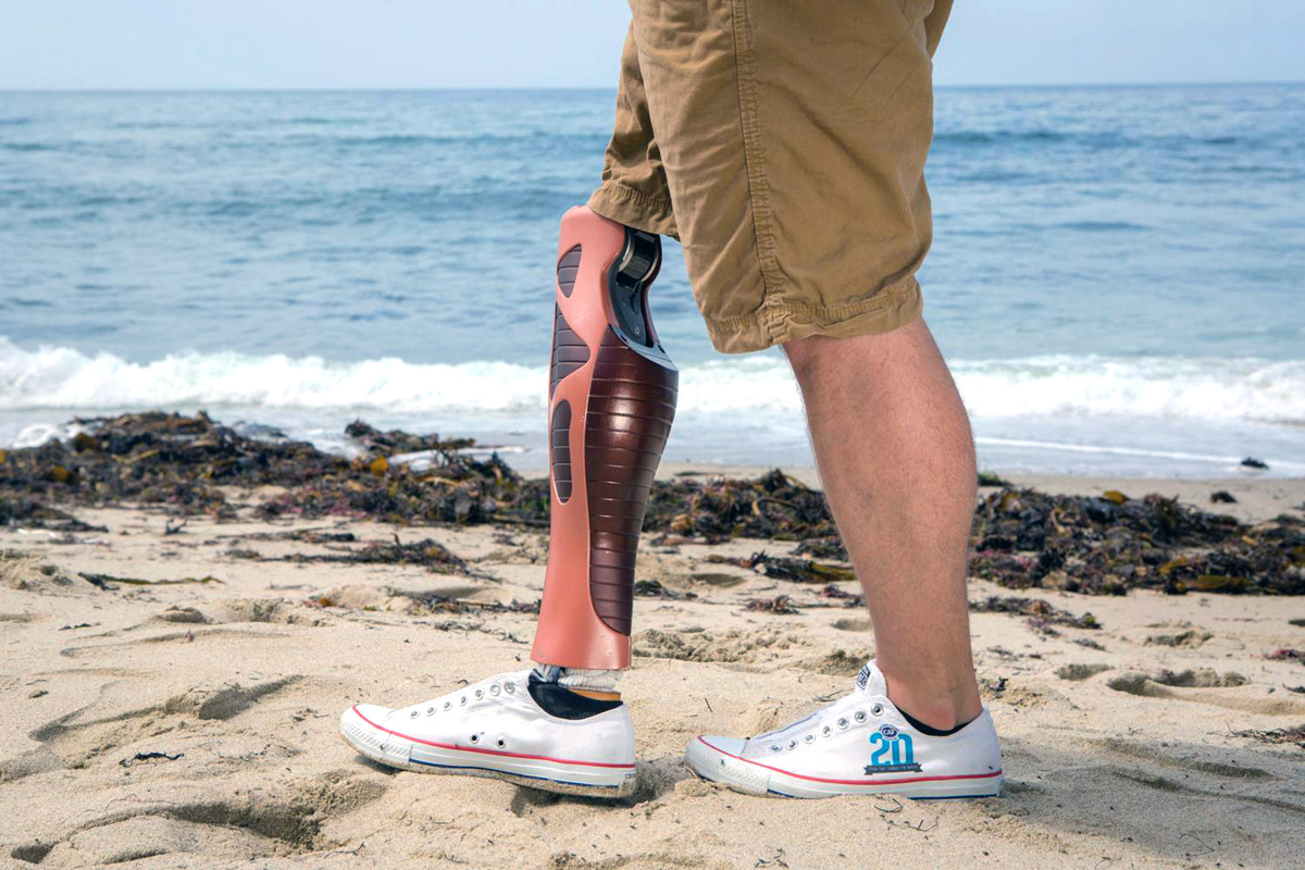 3D printed prosthetic leg covers from unyq