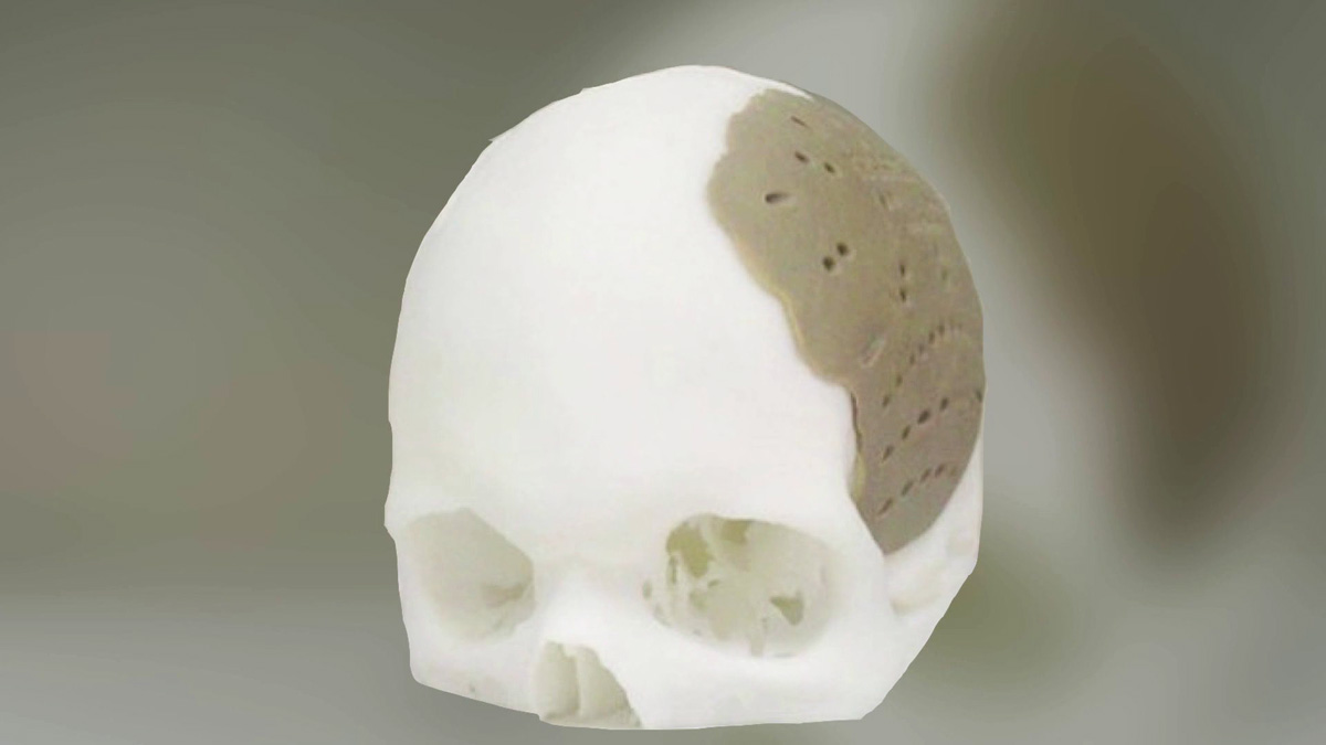 oxford performance materials 3D printed skull implant