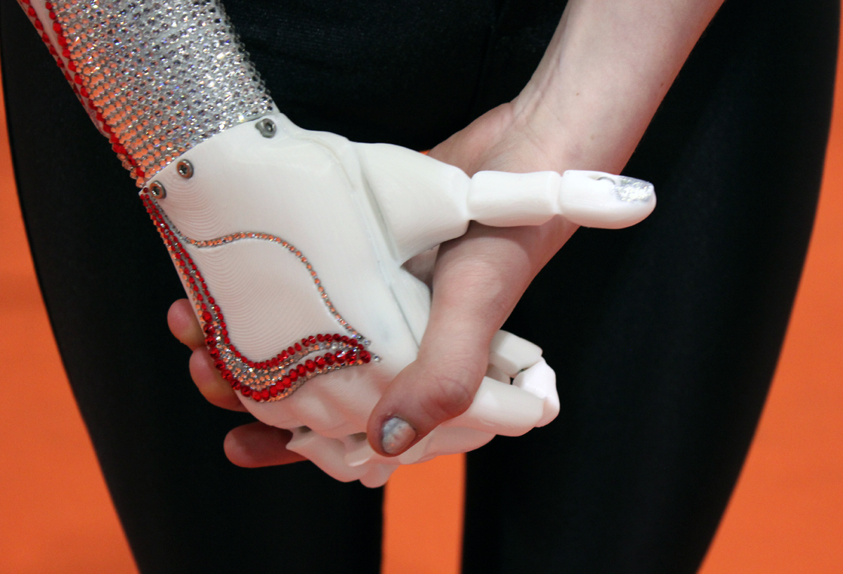 3D printed Swarovski bionic hand from open bionics with grace mandeville