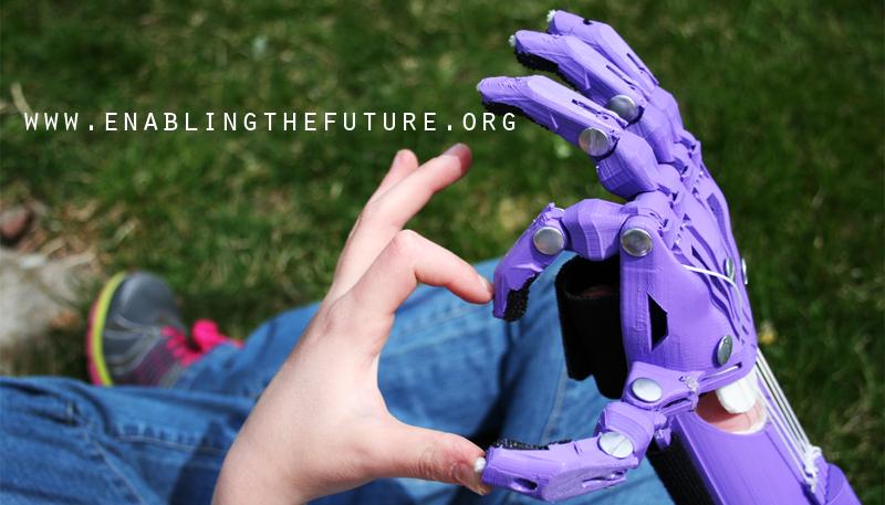 e-nable 3D printing prosthetics