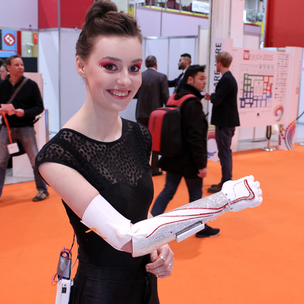 grace mandeville 3D printed bionic arm from open bionics
