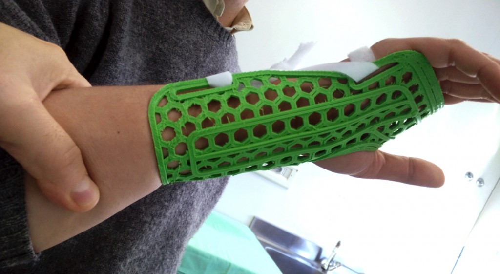 3D printed splint from WASP