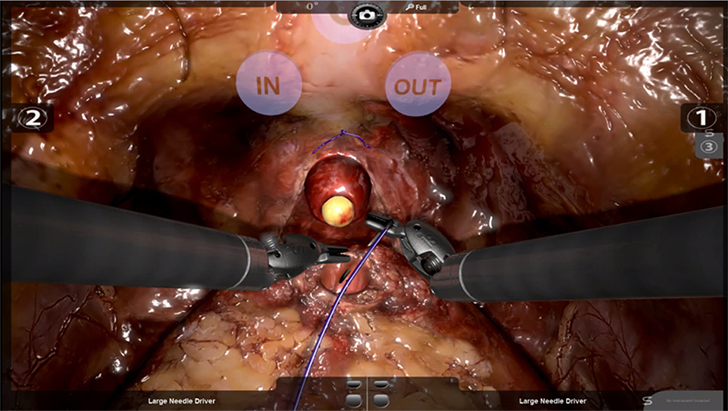 Prostatectomy simulation with 3D Systems robotix