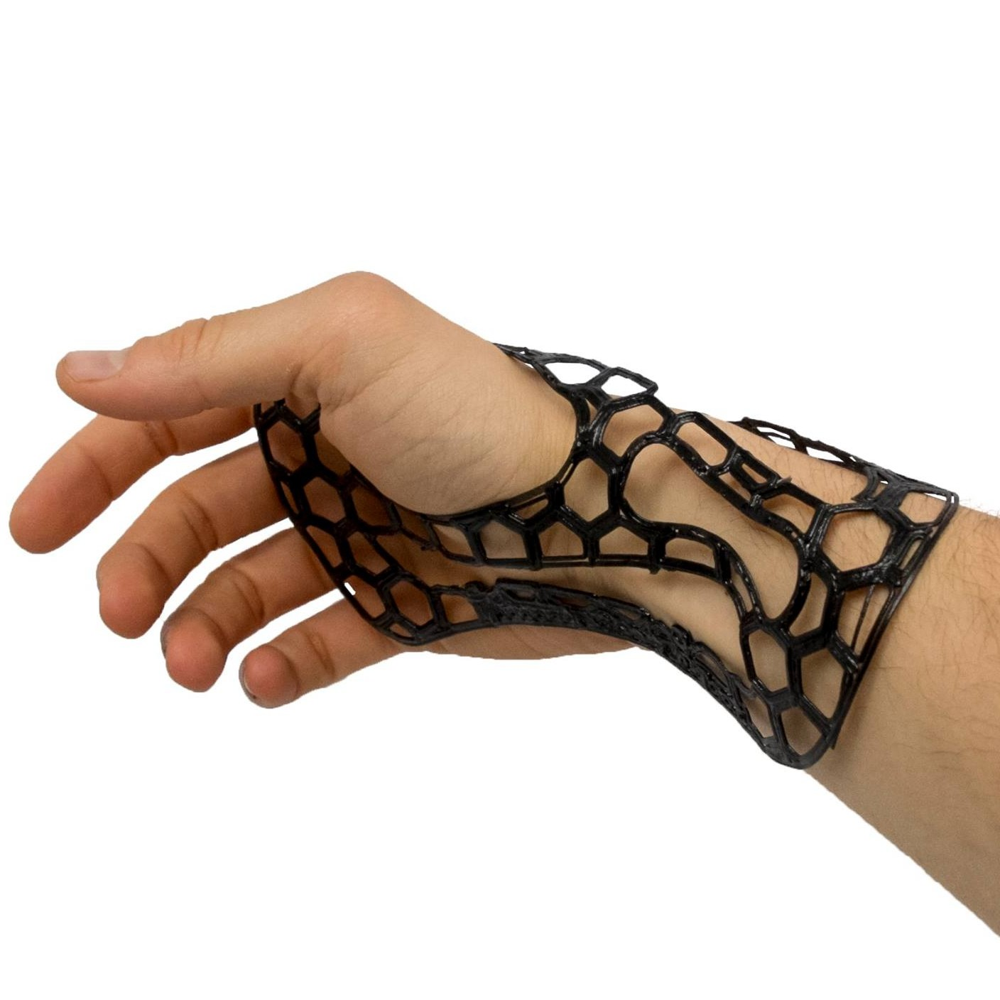 Prof. Levi's +Lab 3D Prints Arm Braces Using High Performance Composites
