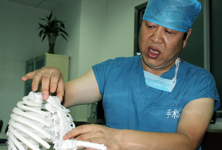 3D printed metal sternum for Chinese patient