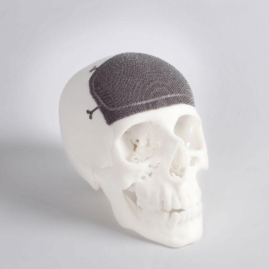 Titanium Implants On Sicily S Etna Volcano 3d Printing