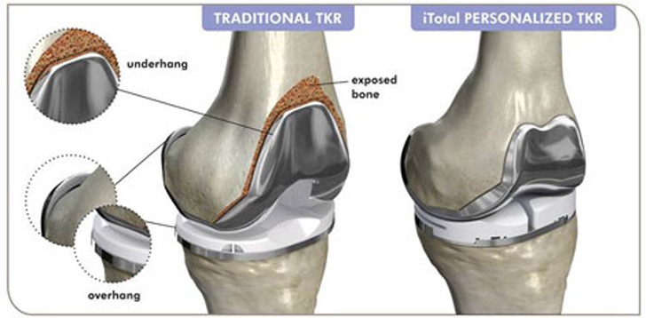 Conformis Ipo For 3d Printed Knees 3d Printing Industry