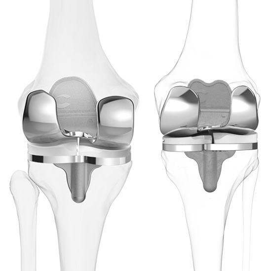 itotal 3D printed knee implants from conformis