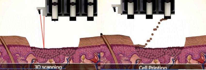 rokit 3D printing skin and organs