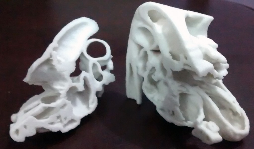 11-month-old Lavesh 3D printed heart surgery in India