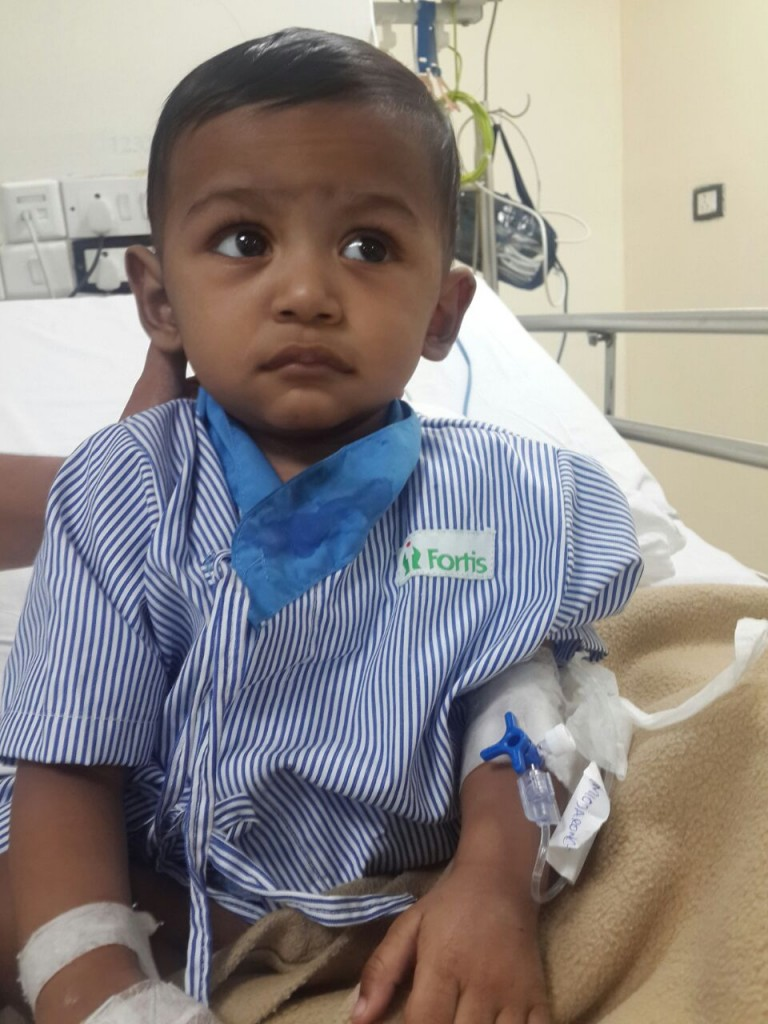 11-month-old Lavesh heart surgery 3D printed heart surgery in India