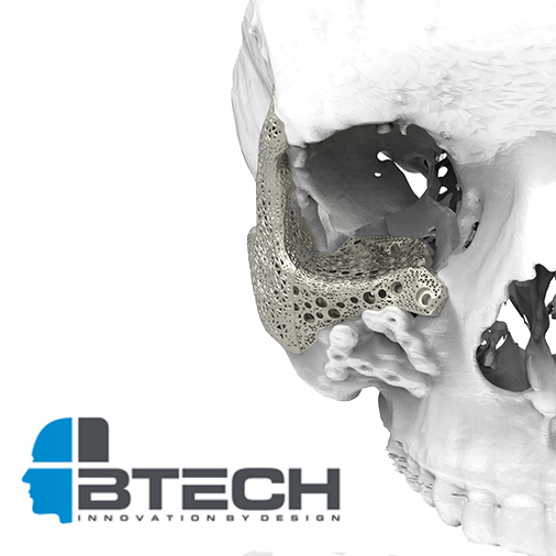 3D printed implant for btech innovation turkey