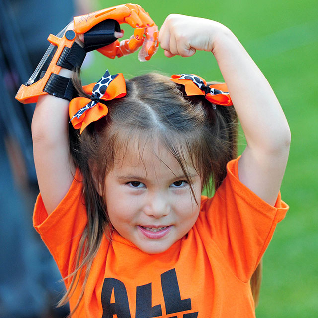 Hailey Dawsonto throws pitc Baltimore Orioles h 3D printed hand