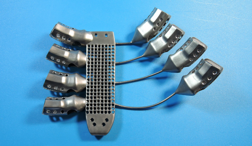 3D printed Sternum and rib implant back for 54 year old cancer patient in spain from CSIRO and Anatomics