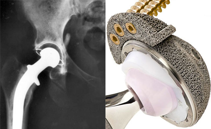 3D printed hip replacement in china