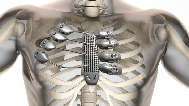 3D printed rib cage and sternum at csiro lab 22 in australia