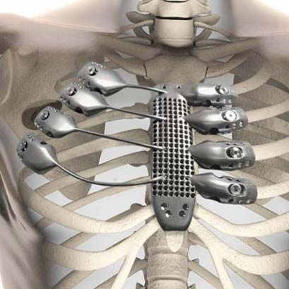 3D printed rib cage sternum at csiro lab 22 in australia