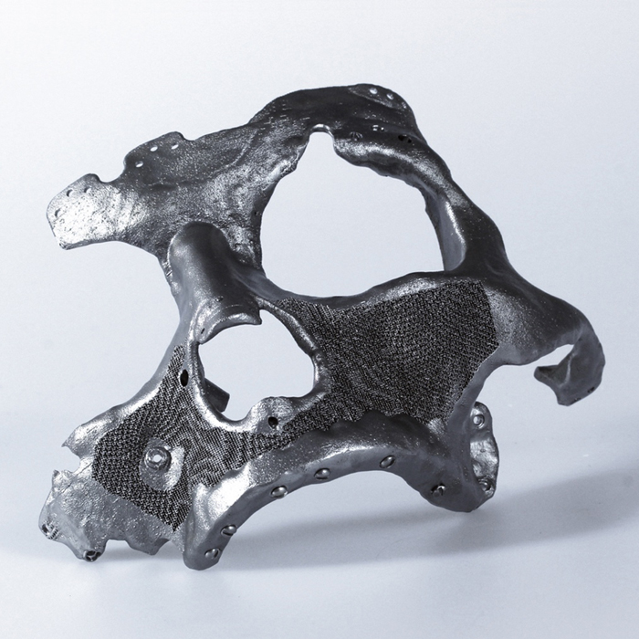 autodesk within medical 3D printed facial implant