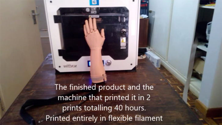 1st fully flexible 3d printed prosthetic