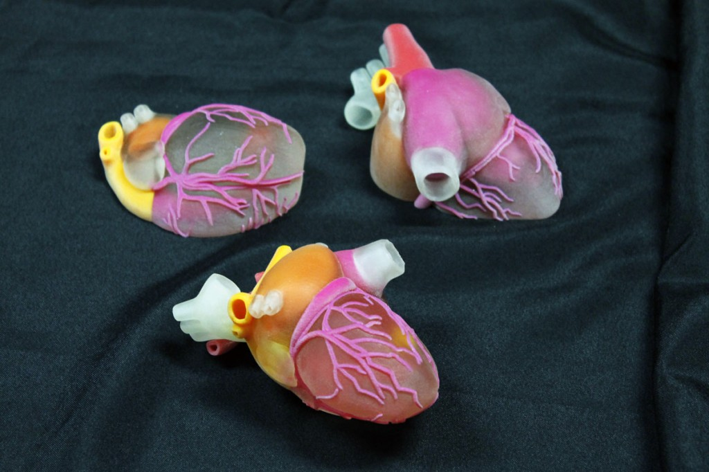 3D Ops 3D printed surgical heart models