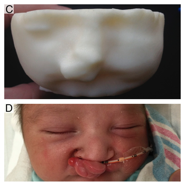 3D printing diagnoses infant deformity before birth