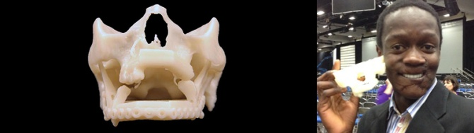 3dprinted_jaw