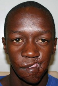 Blessing Makwera's facial damage before surgery