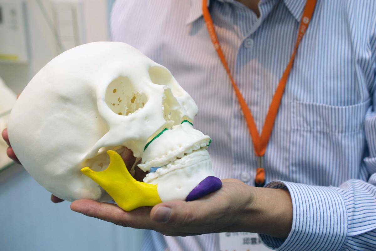 DETEKT 3D printers in Taiwan plastic surgery 3D printed skull