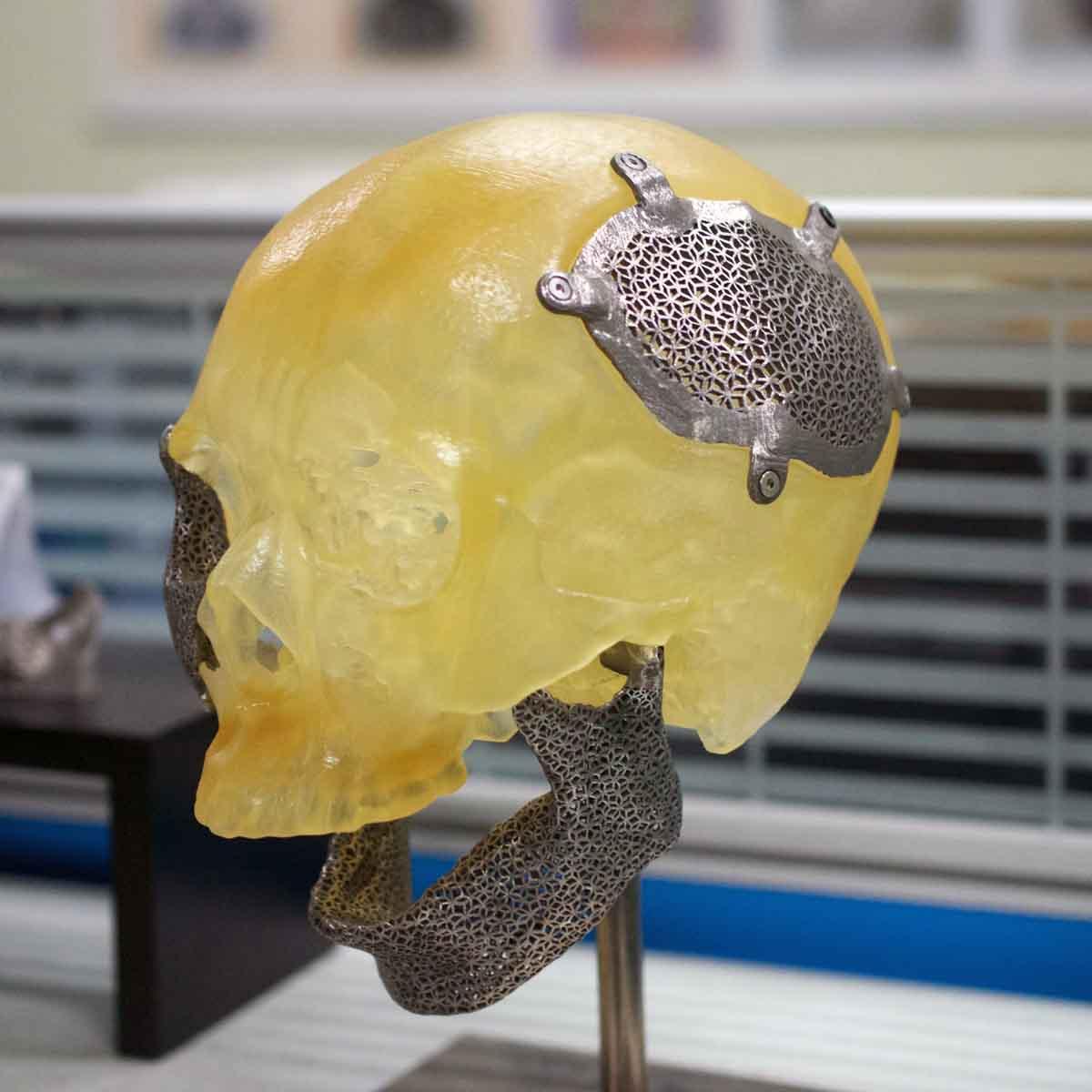ITRI optical engine metal 3D printer 3D printed medical implant