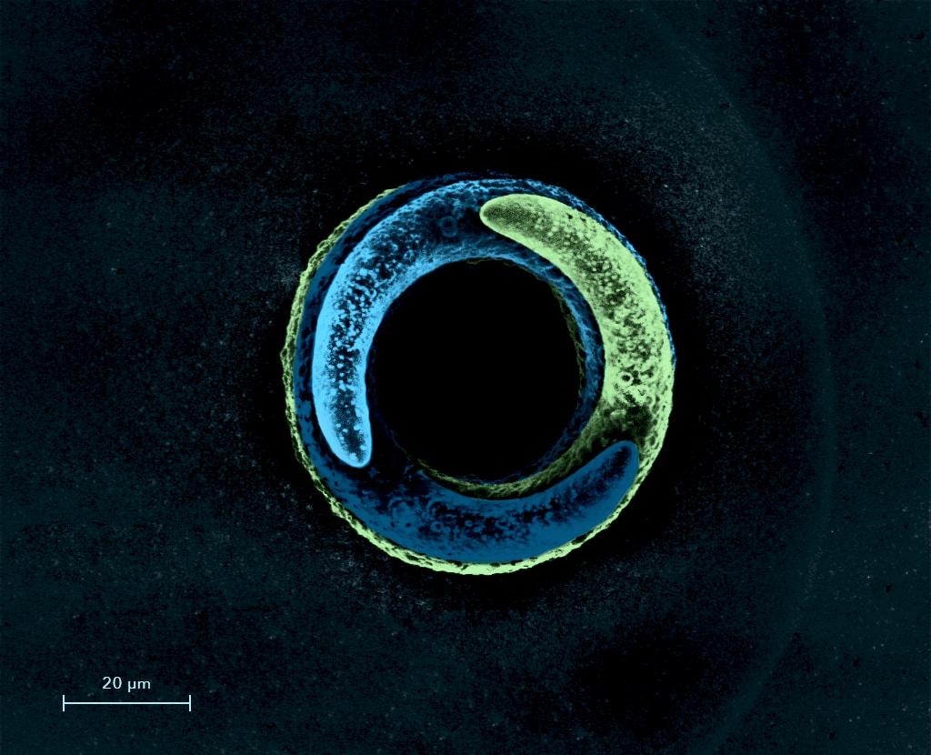 microscope cytosurger fluidfm micro metal 3D printing