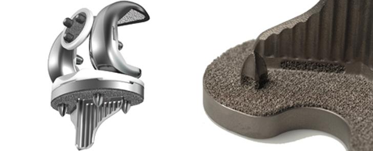 stryker-3d-printed-knee-implant.jpg