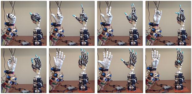 University of Washington 3D printed biomimetic prosthetic-hand moving