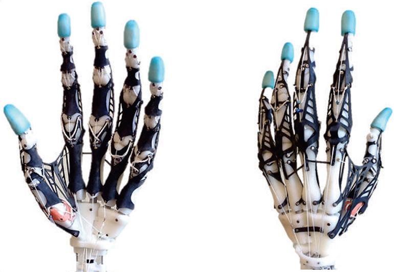 University of Washington 3D printed biomimetic prosthetic-hand