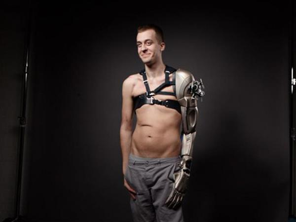 amputee-james-young-gets-cool-3d-printed-bionic-prosthetic-inspired-by-metal-gear-solid-game-1