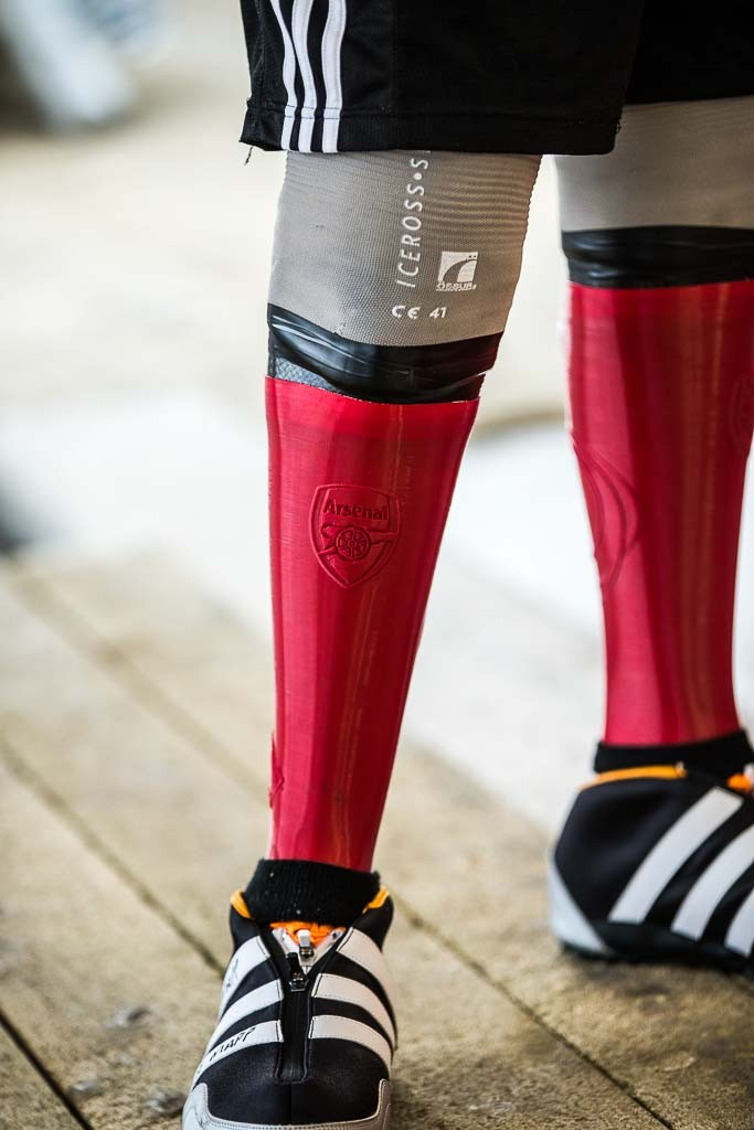 3D printed prosthetic covers paralympic bobsledder Corie Mapp