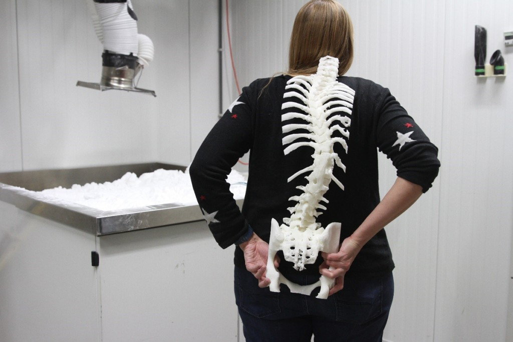 Materialise's Vanessa Palsenbarg with 3D printed spine