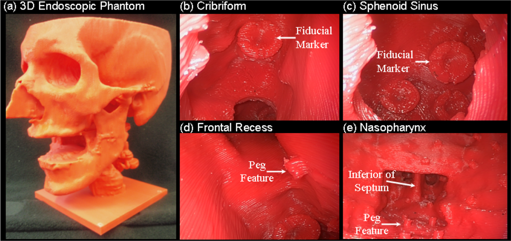 Photographs of 3D endoscopic phantom for the development of real-time tracking/navigation and image fusion methods