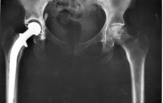 A titanium implant could have a flaw