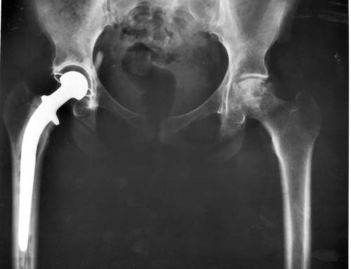 Is 3D Printed Titanium Fatally Flawed?