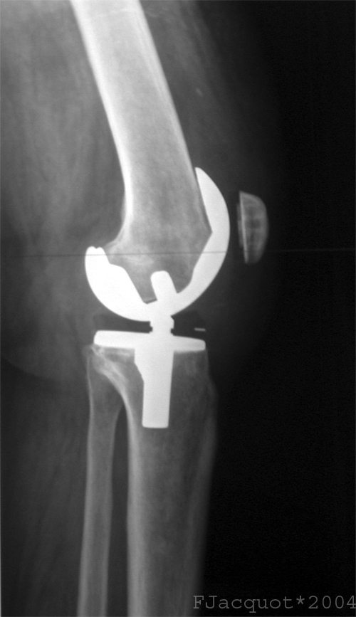 Knee replacement surgery could be about to get less brutal with bioglass